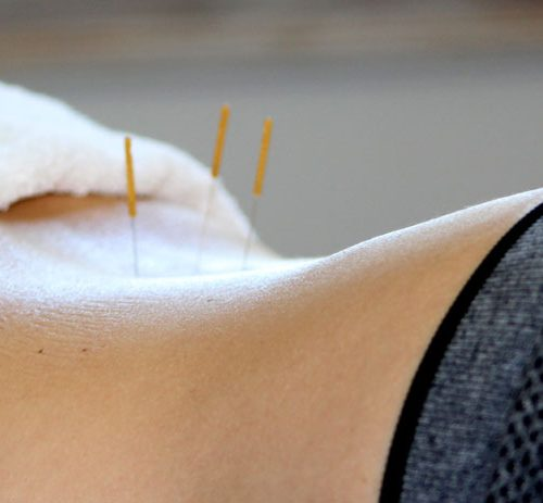Needling-close-up